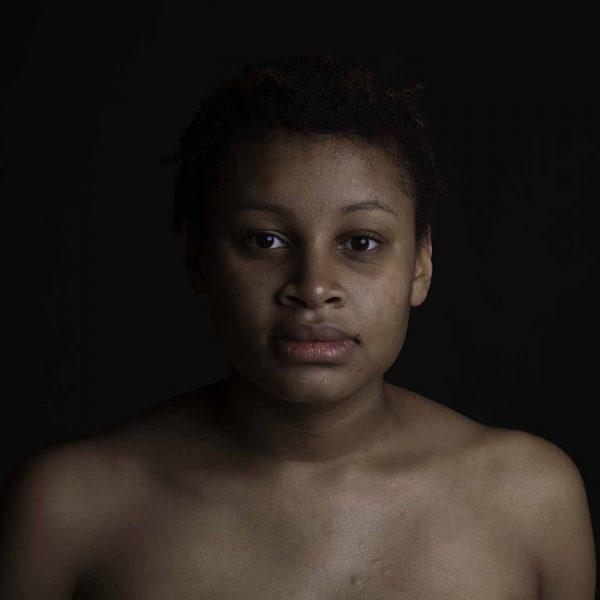 AP 10 The Skin I'm In by Nicole Buchanan